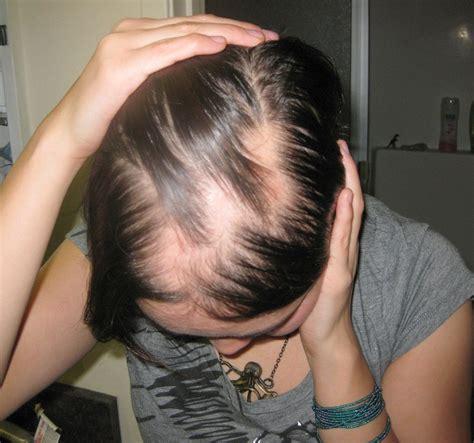 female pattern hair loss thyroid thyroid and hair loss hyperthyroidism hypothyroidism