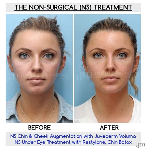 juvederm hair styles chin fillers before and after before and after of