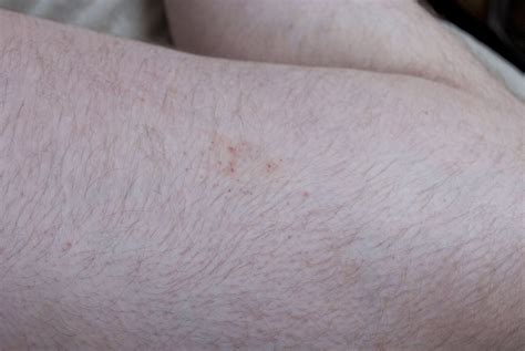 picture of bed bug bites on humans images of bed bug bites on humans 28 images bed bug