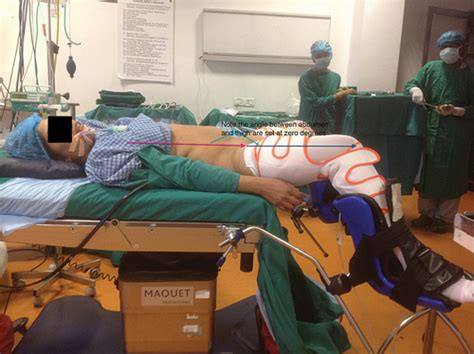 operating room positioning slh chapter 7 patient positioning glowm
