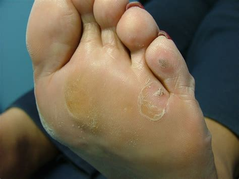 Treating Planters Warts by For Plantar Warts Warts Au