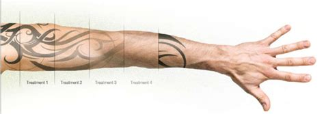 tattoo removal essex laser tattoo removal essex southend on sea