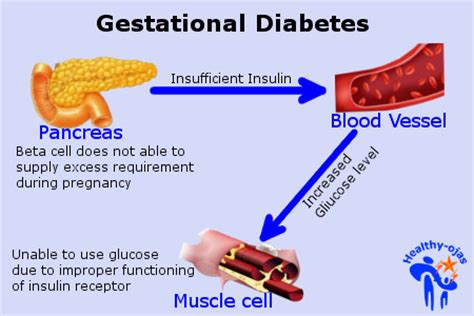 gestational diabetes cookbook for healthier and babies with tons of easy to cook recipes for gestational diabetes books healthy ojas