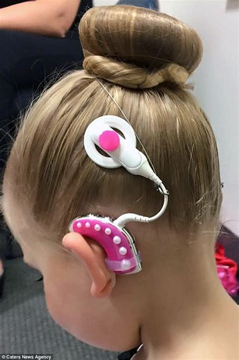 hairstyles to hide cochlear implants mum creates colorful accessories for her daughter s