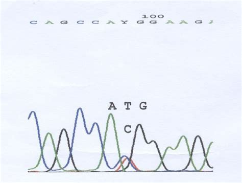 gestazionale piccola grave aploinsufficienza gene shox in una bambina nata