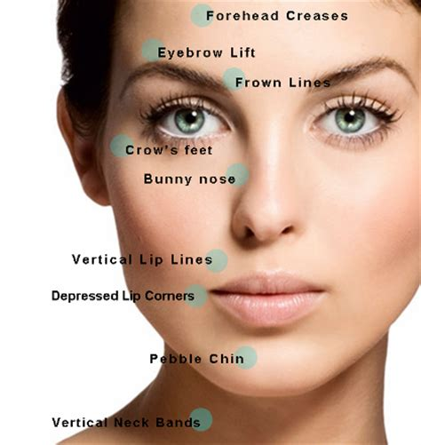 Where Your Wrinkle Filler Gets Injected Podcast by Wrinkle Relaxing Injections Botox Rejuvenation