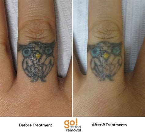 how to remove a finger tattoo 728 best removal in progress images on