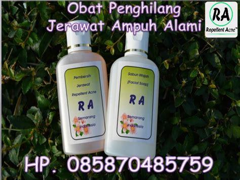 Obat Amandel Alami Paling Uh obat jerawat alami paling uh 0858 7048 5759
