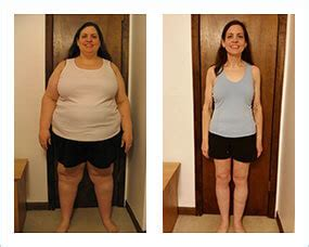 weight loss 6 weeks after gastric sleeve preparing for weight loss surgery essential checklists