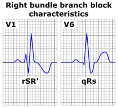 right bundle branch block wikipedia