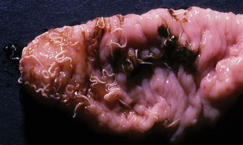 Parasite Symptoms In Humans Pictures