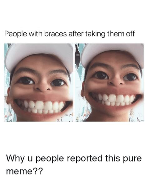 Braces Memes - people with braces after taking them off why u people