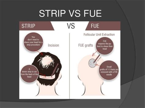 fue vs strip hair transplant cost in pune check prices and compare