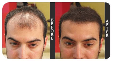 before and after thinning mens haircut hair thickener 400ml amazing hair thickening spray