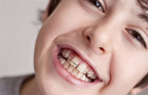 Veneer Pemutih Gigi mengatasi gigi kelinci veneer gigi kawat gigi pemutih gigi