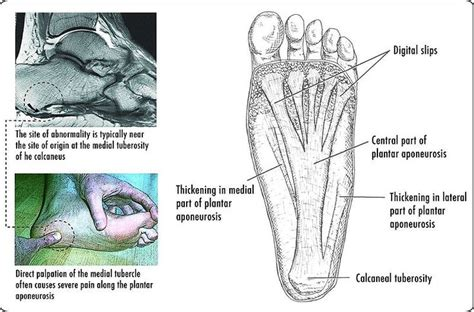 What Causes Planters Fasciitis by Plantar Fasciitis Two Lesser Known Causes Of Heel