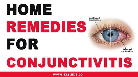 conjunctivitis ayurvedic home remedies
