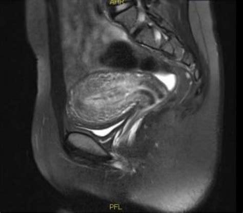 irregular bleeding after c section abnormal uterine bleeding asociated to actinomices