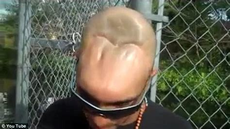 meet the half head man as he explains why he has half a head video photos man with half a head explains how he lost most of