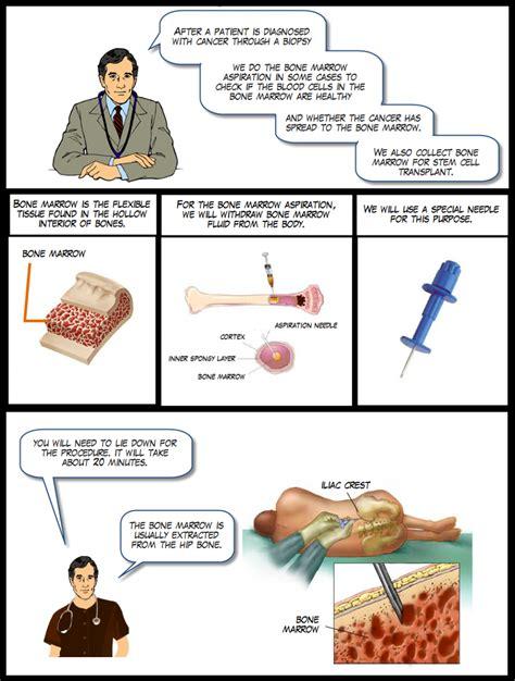 bone marrow biopsy report sle procedure on bone marrow aspiration