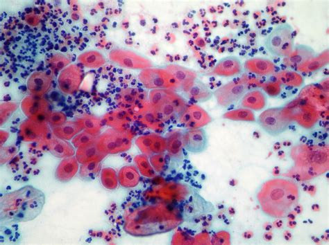 pap test metaplasia diagnostic of cervical pathology pap smear pap test