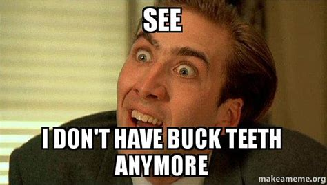 Buck Teeth Meme - see i don t have buck teeth anymore sarcastic nicholas