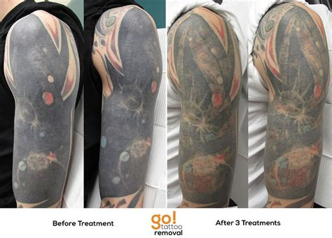 sleeve tattoo removal before and after this half sleeve has been a work in progress after 3