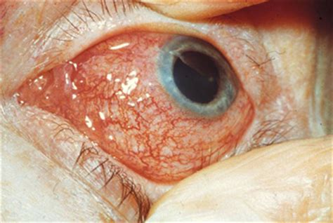 causes, complications and treatment of a red eye bpj