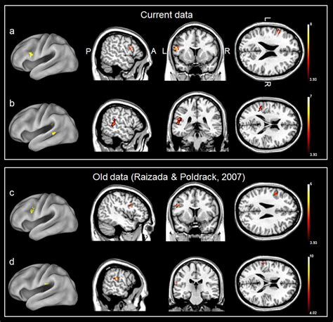 multivariate pattern analysis wiki categorical speech processing in broca s area an fmri