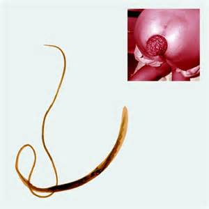 Types Of Worms In Human Stool by Worms Quot N Quot Us A Look At 8 Parasitic Worms That Live In