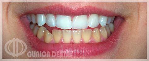 fundas zirconio problemas clinica dental conil de la frontera