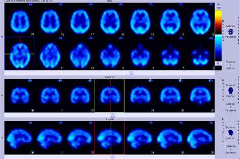 imagenes medicas c por a imagen m 233 dica wikipedia la enciclopedia libre