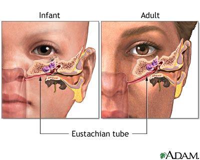 ear infection acute: medlineplus medical encyclopedia