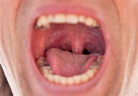 see do you what infected tonsils look like health24