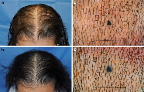 pattern hair loss cure male and female pattern hair loss before and after