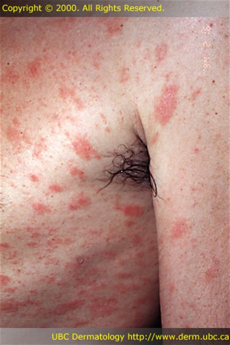 download free pityriasis rosea herald patch on back