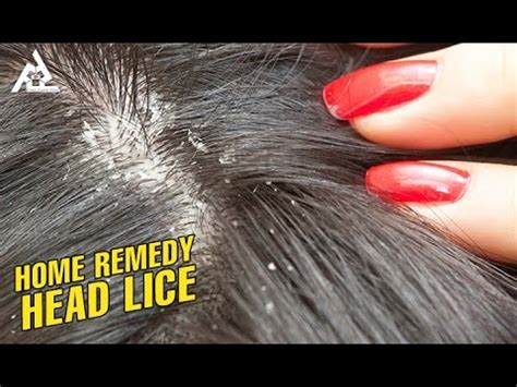 home remedy for lice best health and tips