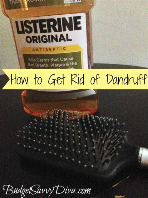 how to get rid of puppy dandruff how to get rid of dandruff pictures 2 models picture