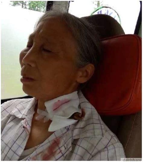 Lq Salur berjalan 7 batu ke hospital dengan kayu terpacak di leher