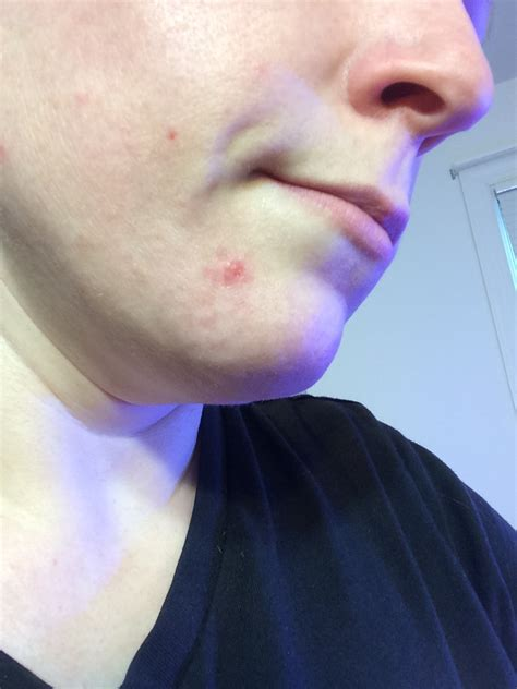 blue light therapy acne before and after red light therapy red light therapy blue light therapy