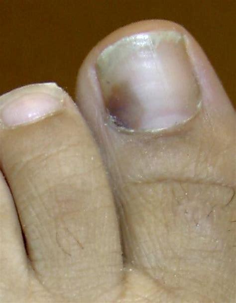 toe cancer black spot toenail melanoma quotes