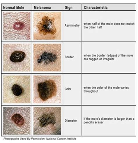 Galerry what causes skin tag moles