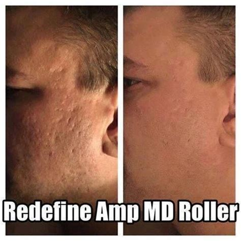 Radiant Renewing My Noor Pack 370 best redefine images on acne skin skin