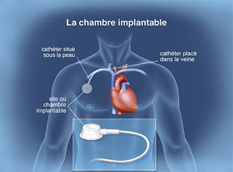 injection chambre implantable chambre implantable pour perfusion idees d chambre chambre