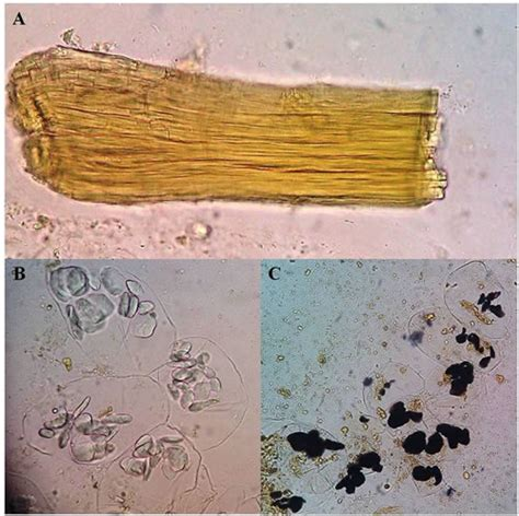 Black Granules In Stool by Laboratory Medicine At A Glance Fibras Musculares Y