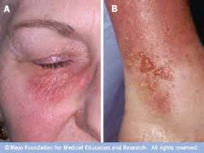 Contact dermatitis mayo clinic