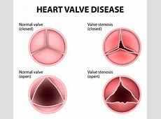 Aortic valve natural remedies - The Drs. Wolfson Natural Remedies For Depression And Fatigue
