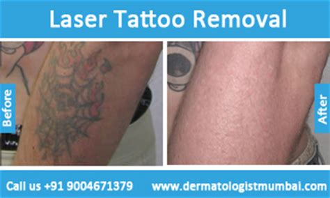 tattoo removal cream in mumbai removal lemon juice