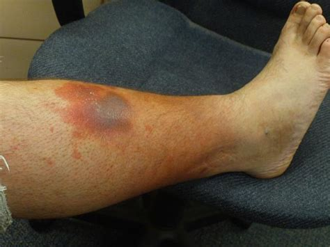 tumors on leg skin cancer leg pictures of skin cancer on legs skin cancer on leg diseases pictures