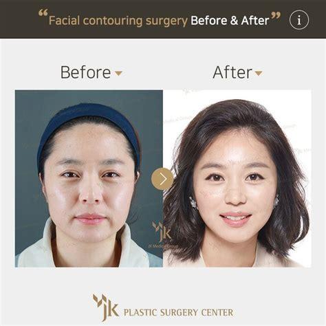 eyebrow lift korea 49 best plastic surgery south korea images on pinterest